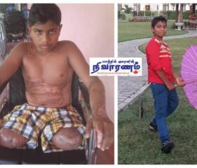 mini-Kishore Kumar before _ after the accident